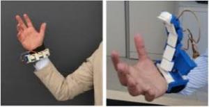 sesto dito